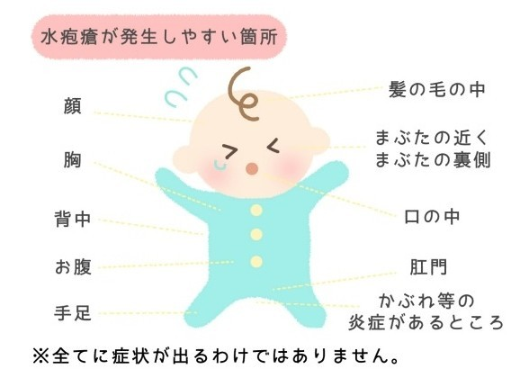 接種 水疱瘡 予防
